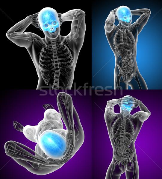 Stok fotoğraf: 3D · tıbbi · örnek · kafatası