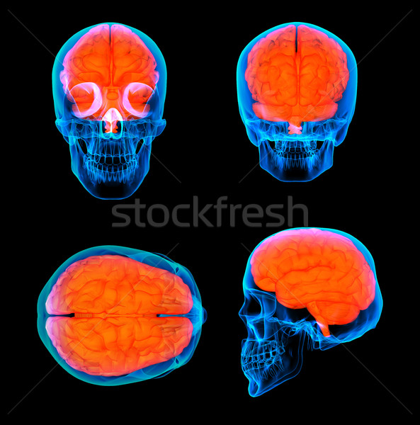 Stock photo: 3d render human red brain X ray