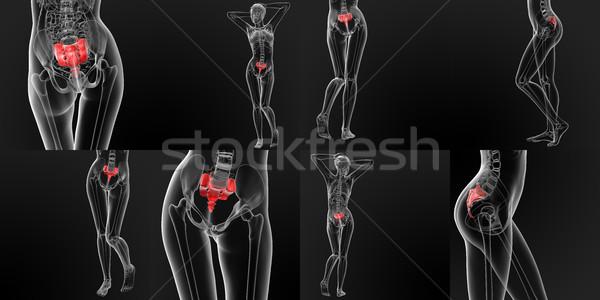 3D レンダリング 医療 実例 骨 薬 ストックフォト © maya2008