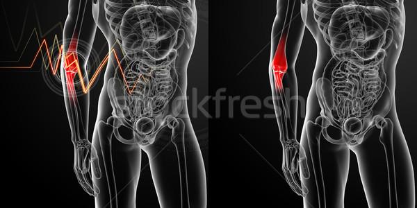 Rendering 3d medici illustrazione braccio dolore salute Foto d'archivio © maya2008