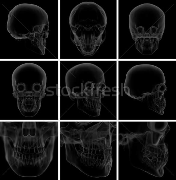 3d render koponya technológia fém kórház kék Stock fotó © maya2008