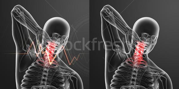 Foto stock: 3D · prestados · ilustração · dor · pescoço · médico