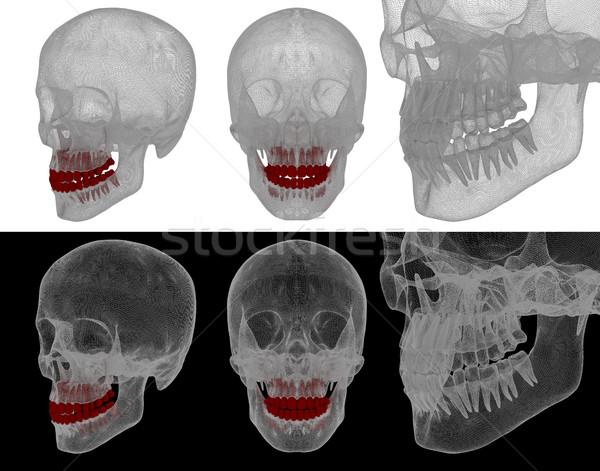 医療 実例 歯 口 歯科 ケア ストックフォト © maya2008
