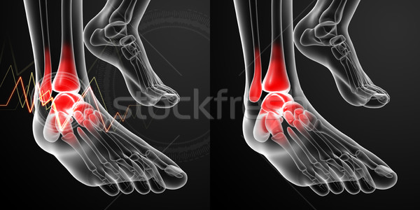 3D rendering illustration of the Ankle pain Stock photo © maya2008