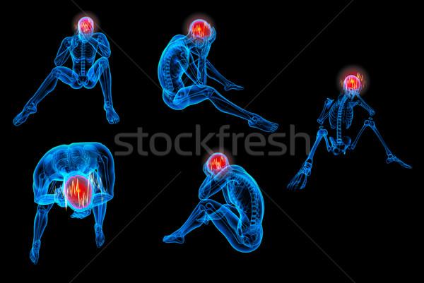 3D レンダリング 人間 座って 頭痛 薬 ストックフォト © maya2008