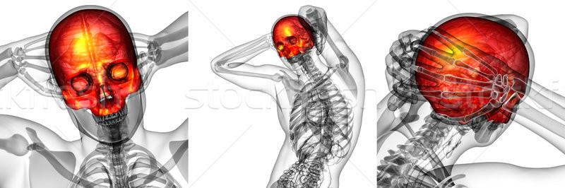 Сток-фото: 3D · медицинской · иллюстрация · череп