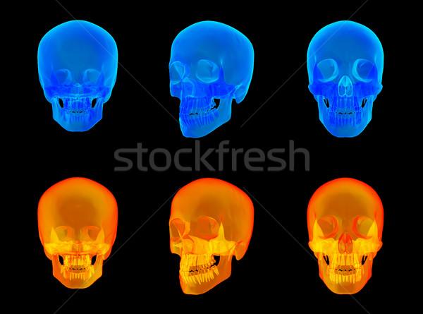 3d render emberi röntgen koponya arc kórház Stock fotó © maya2008