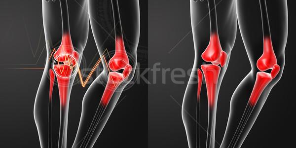 3D レンダリング 人間 膝 痛み 解剖 ストックフォト © maya2008
