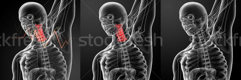 3D ilustração dor pescoço médico Foto stock © maya2008