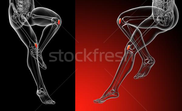 3D レンダリング 医療 実例 骨 ストックフォト © maya2008