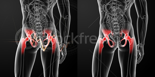 3D rendering medical illustration of a painful hip joint  Stock photo © maya2008