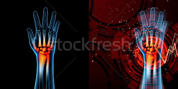 3D render anatomi örnek el ağrı Stok fotoğraf © maya2008