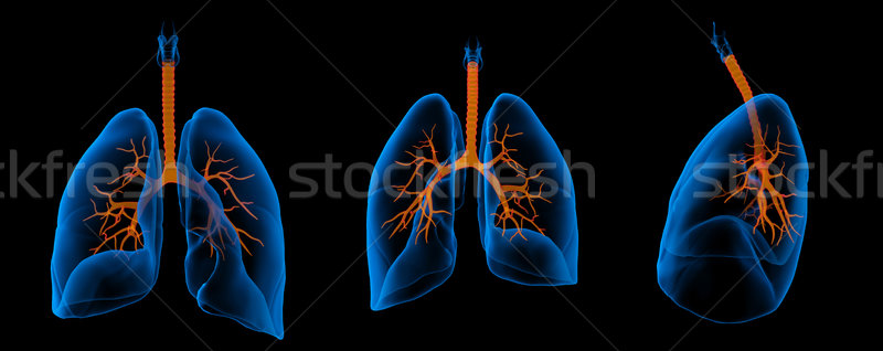 3D medical illustration - lungs with visible bronchi  Stock photo © maya2008