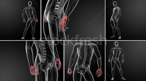 3D renderelt kép illusztráció kéz fájdalom emberi Stock fotó © maya2008