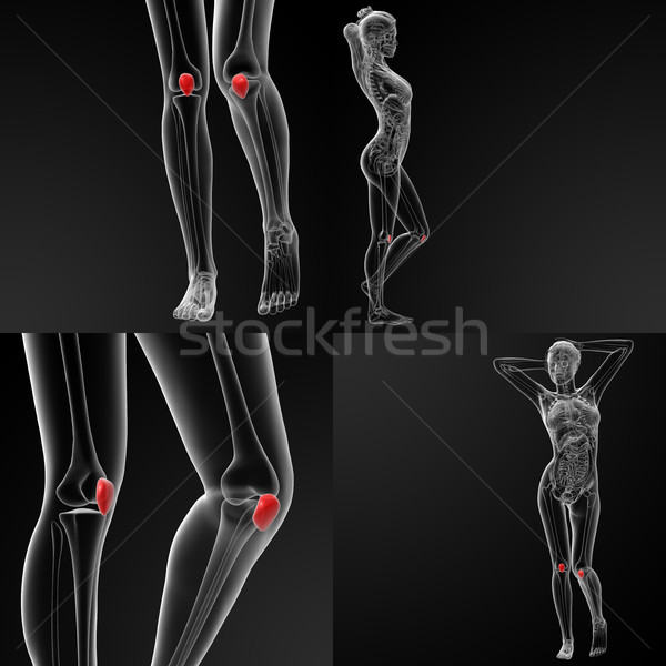 3D rendering illustration of the  patella bone Stock photo © maya2008
