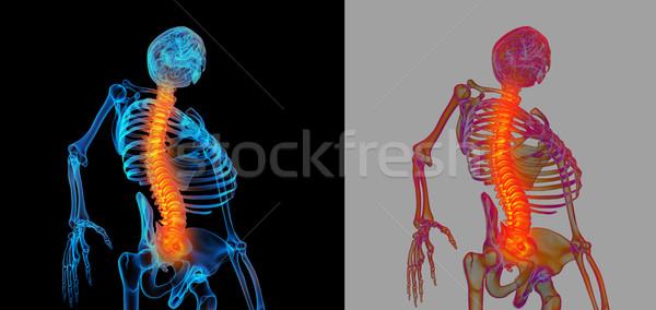 3D umani dolente colonna vertebrale medici Foto d'archivio © maya2008