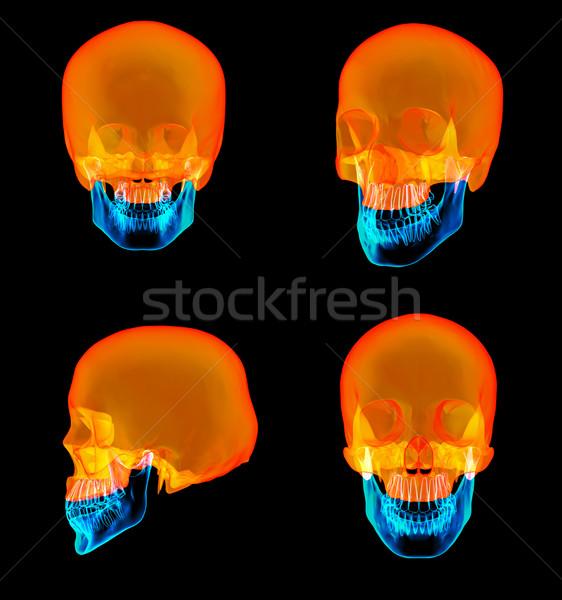 3D rendering of human Skull Upper half Stock photo © maya2008