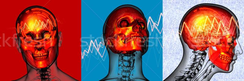 3D medische illustratie hoofd pijn Stockfoto © maya2008