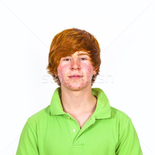 Aantrekkelijk jongen puberteit gezicht man Stockfoto © meinzahn