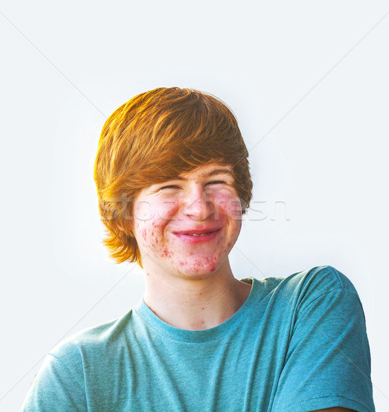 Smart мальчика акне лице Сток-фото © meinzahn