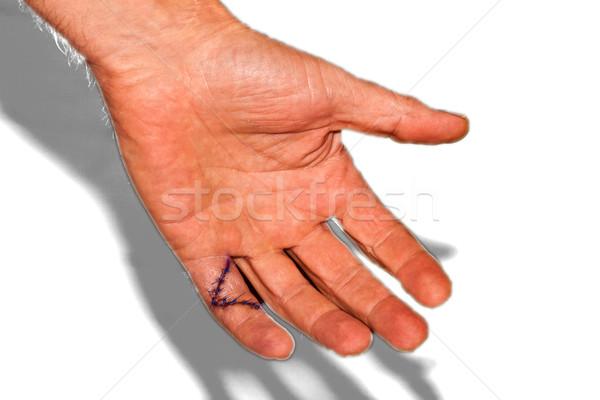Peu doigt opération succès personne bras Photo stock © meinzahn