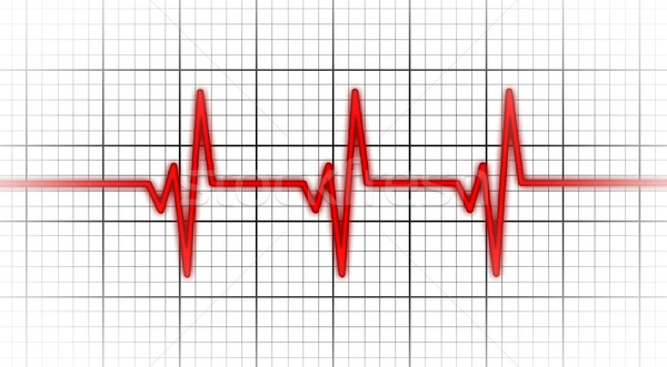 Eletrocardiograma saúde batida de coração monitor médico corpo Foto stock © michaklootwijk