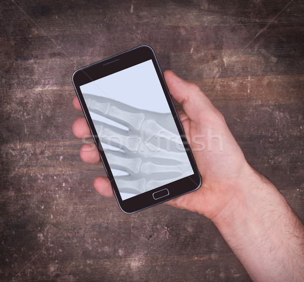 Smartphone display showing an x-ray Stock photo © michaklootwijk