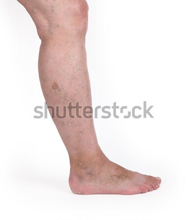 Old woman with varicose veins Stock photo © michaklootwijk