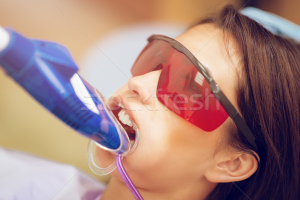 Laser Teeth Whitening Stock photo © MilanMarkovic78