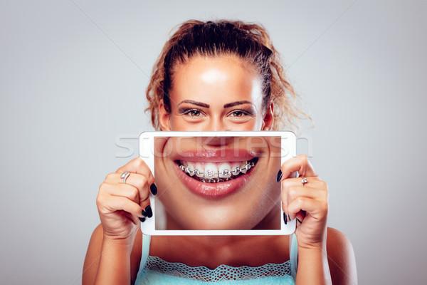 することができます 笑顔 ブレース 笑みを浮かべて 少女 歯 ストックフォト © MilanMarkovic78