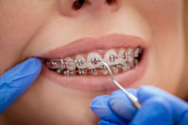 Szelki dentysta kobiet pacjenta prawdziwi ludzie Zdjęcia stock © MilanMarkovic78
