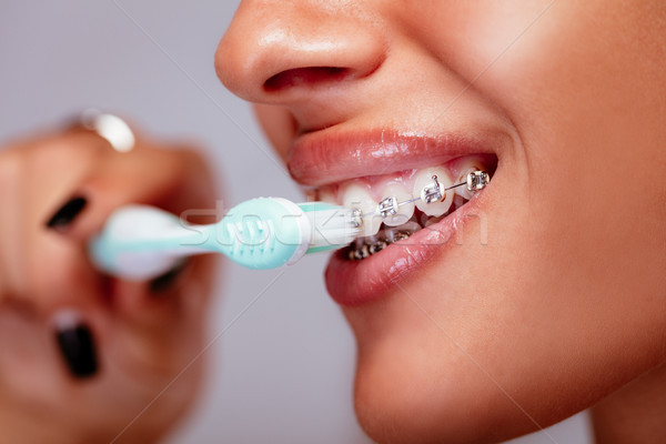 ブレース クローズアップ 笑顔の女性 顔 白い歯 ストックフォト © MilanMarkovic78