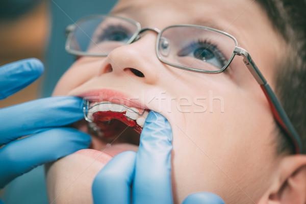 Fakecop, fakeagent, hareketli oral hemsire resimleri ass good
