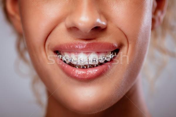 Sonrisa tirantes primer plano mujer dientes blancos nina Foto stock © MilanMarkovic78