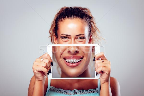 зубов фигурные скобки улыбаясь девушки за цифровой Сток-фото © MilanMarkovic78