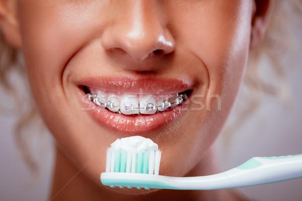 Fogmosás fogszabályozó közelkép mosolygó nő arc fehér fogak Stock fotó © MilanMarkovic78