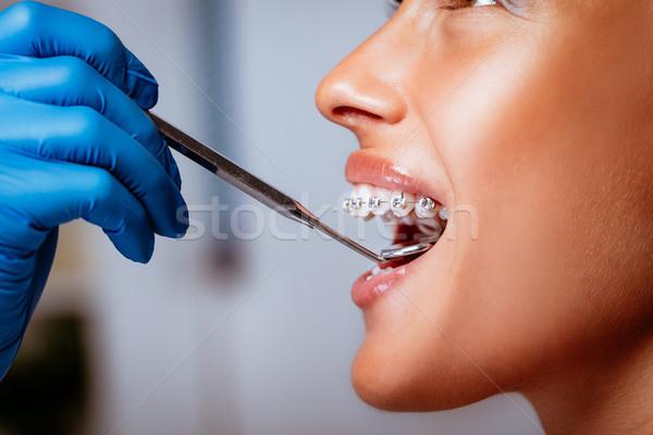 Zdjęcia stock: Uśmiechnięta · kobieta · dentysta · szelki · stomatologicznych · lustra