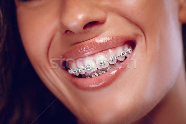 Glimlach bretels gelukkig metaal Stockfoto © MilanMarkovic78