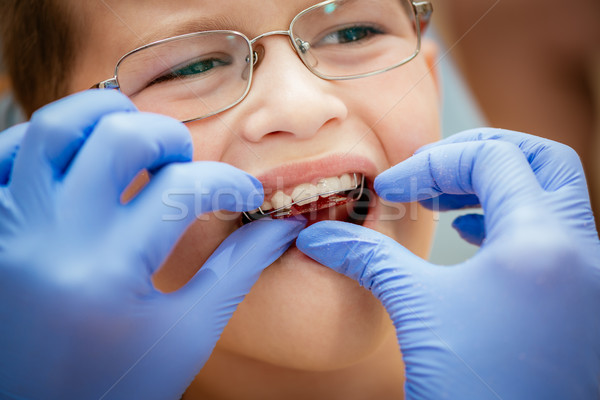 Little Boy At The Dentist Stock photo © MilanMarkovic78