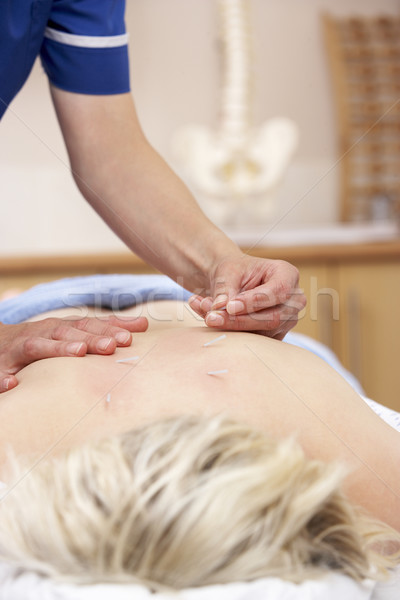 Acupuncturist treating female client Stock photo © monkey_business