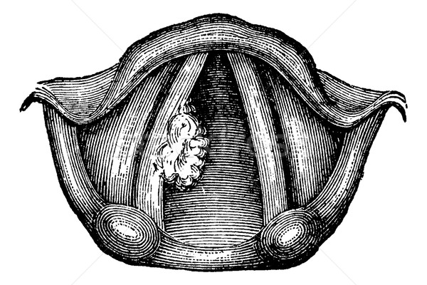 Solitary Papilloma of the Larynx, vintage engraving Stock photo © Morphart