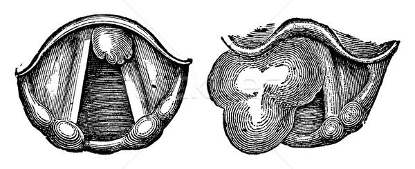 Strottehoofd vintage gegraveerd illustratie geneeskunde Stockfoto © Morphart