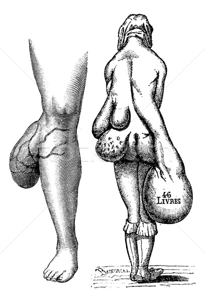 Fig. 767. Lipomas leg, Fig. 768. Multiple lipomas in a woman, vi Stock photo © Morphart