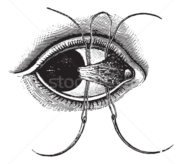 Ligation of pterygium, vintage engraving. Stock photo © Morphart