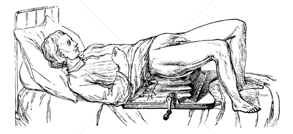 Subject operated on the device for lithotripsy, vintage engravin Stock photo © Morphart