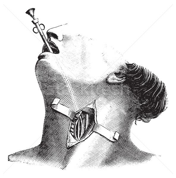 External esophagectomy, vintage engraving. Stock photo © Morphart