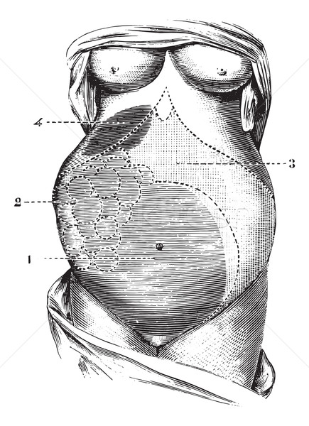 Multilocular ovarian cyst, vintage engraving. Stock photo © Morphart
