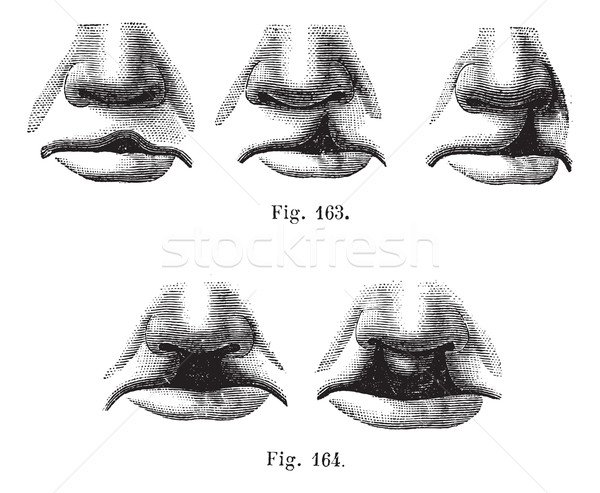 Fig. 163. Degrees of cleft lip simple,  Fig. 164. Cleft lip doub Stock photo © Morphart