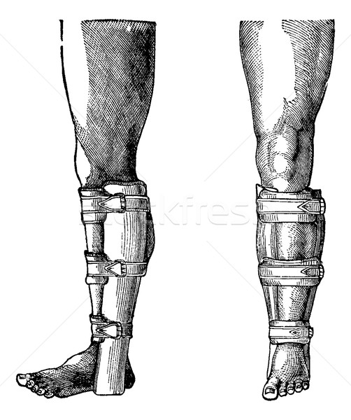 Splint Applied to a Fractured Leg, vintage engraving Stock photo © Morphart