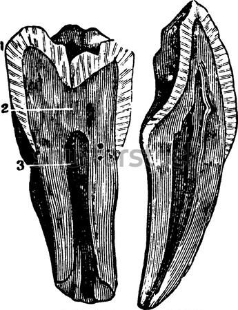 Narrowing of the urethra several consecutive blennorrhagias, vin Stock photo © Morphart
